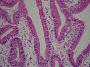 Microvilli dell'intestino tenue ed assorbimento dei monosaccaridi